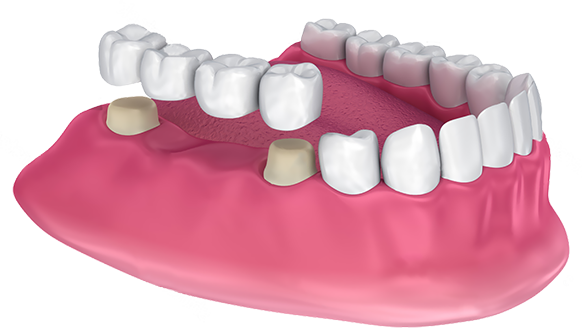 Crown , Bridge or Denture Cap Crown & Bridge
