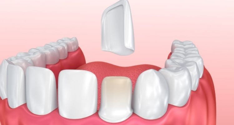Dental Veneer's Treatment