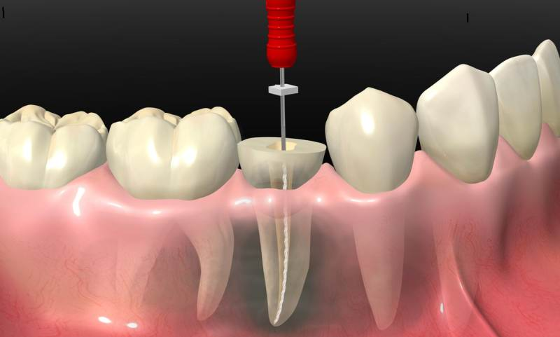 Root-Canal- RODSBD