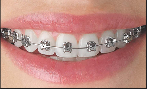 Orthodontic treatment - RODSBD